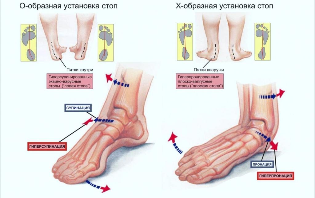 Болят суставы ноги при беге парацетамол от боли в суставах