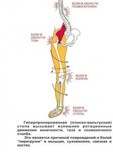почему болит сустав на коленке