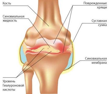 Бег без травм: как сохранить суставы здоровыми. Часть 1. Как работает сустав.