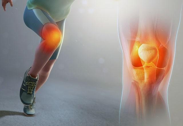 «Колено бегуна»: как диагностировать, лечить и не допустить травмы